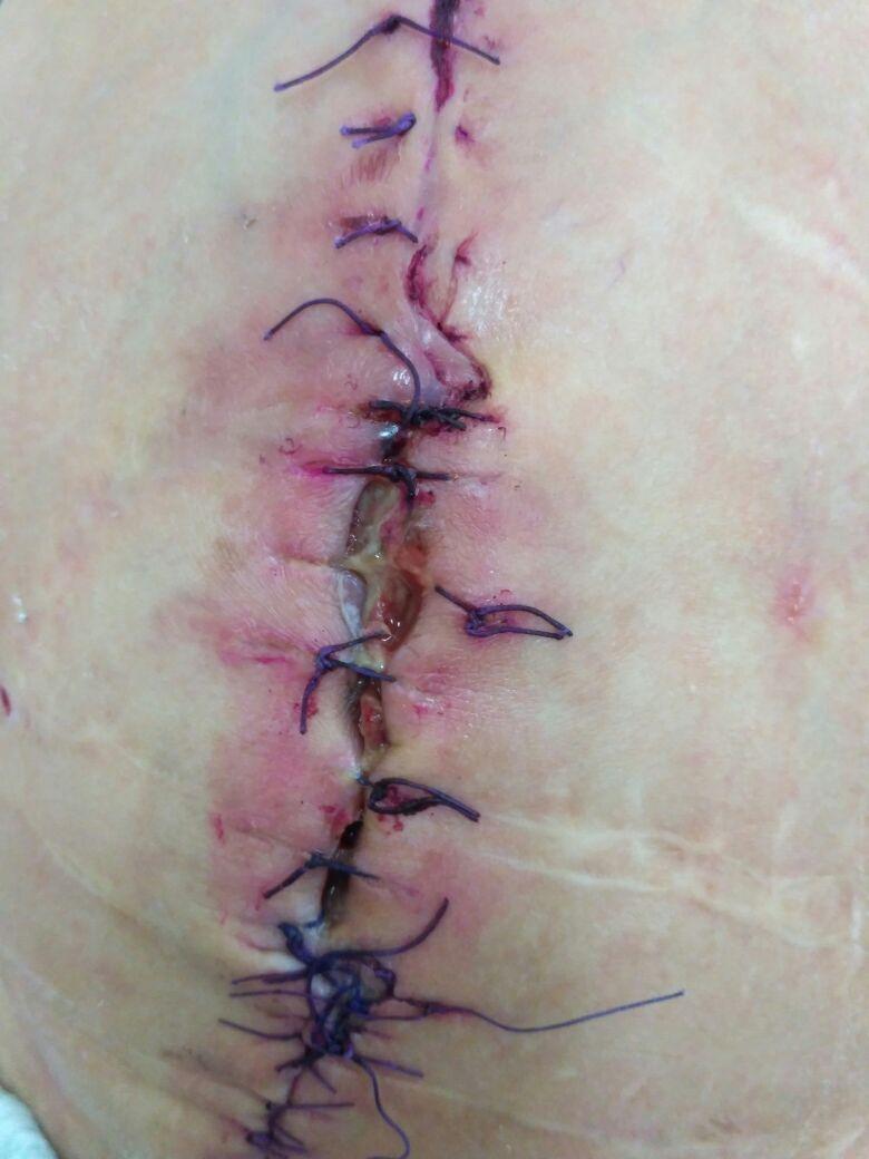 Чем обработать рану после снятия швов в домашних условиях 148